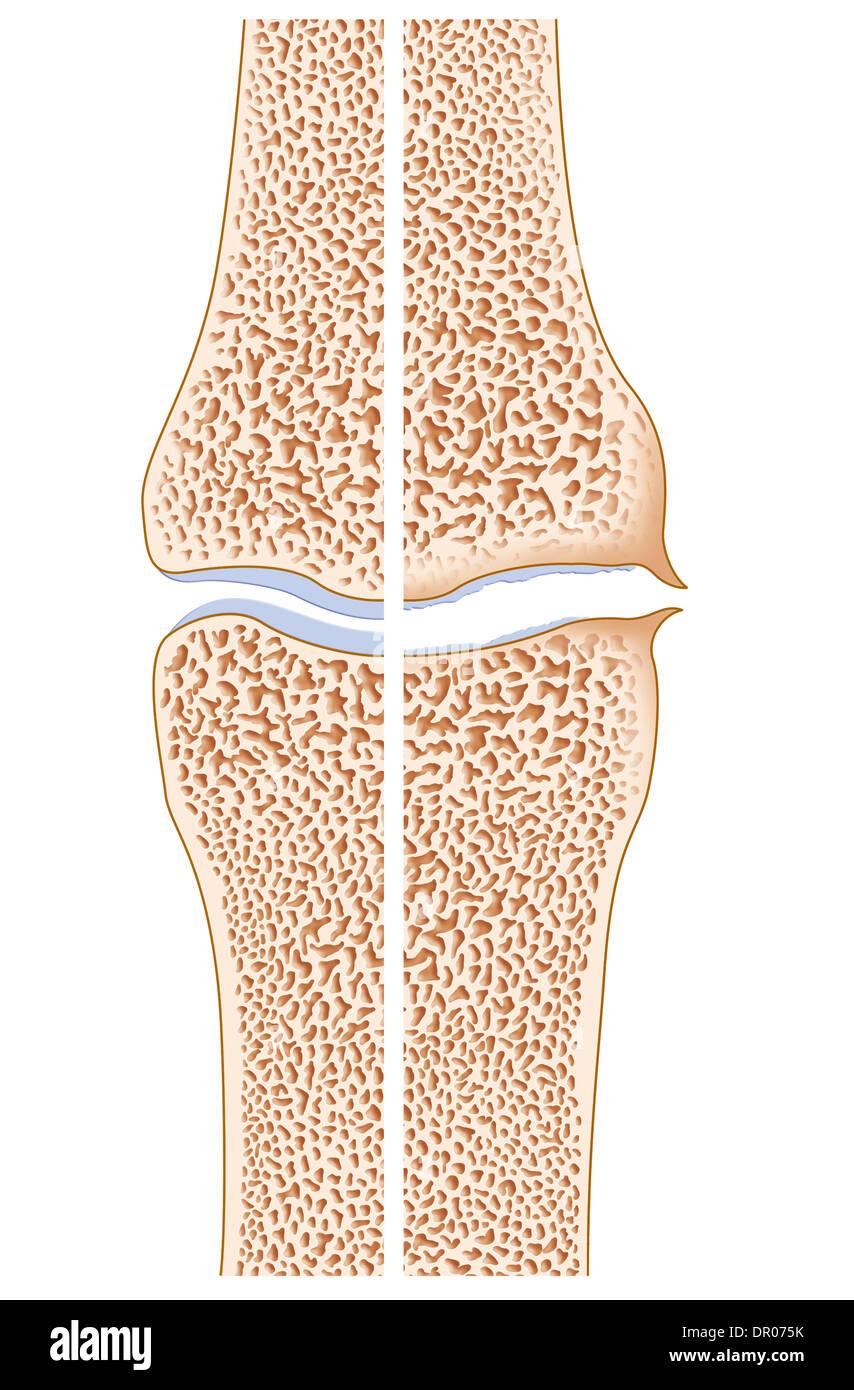 OSTEOARTHRITIS, ILLUSTRATION - Stock Image