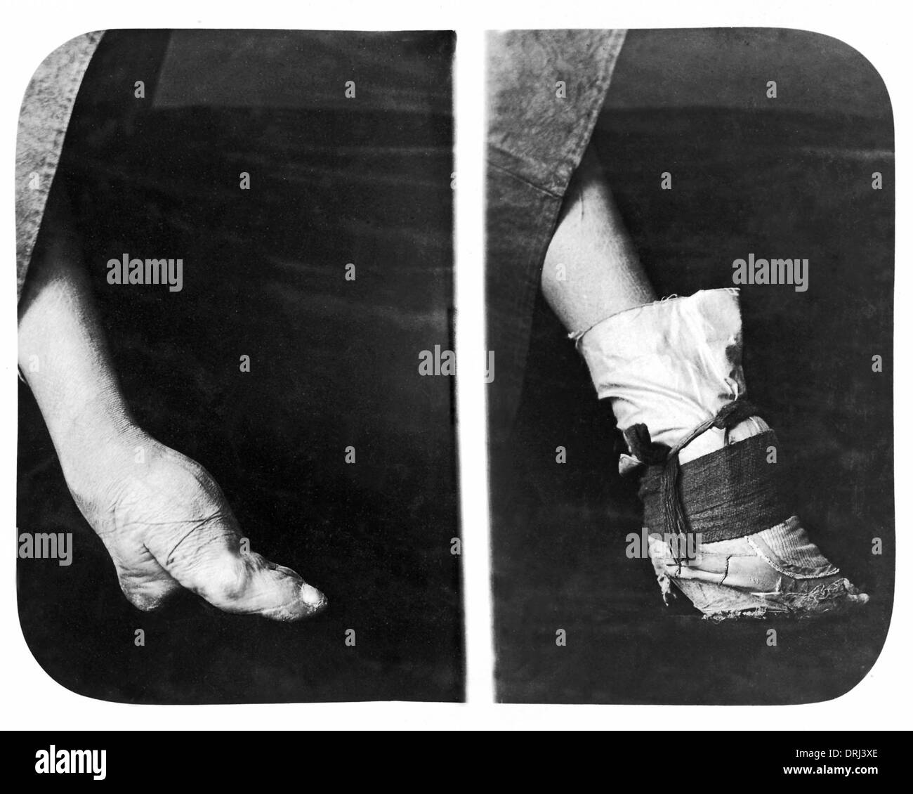 Foot Binding Black And White Stock Photos Images Alamy