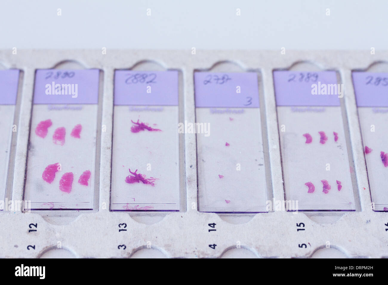 glass slides with histology samples in a histology labor Stock Photo ...
