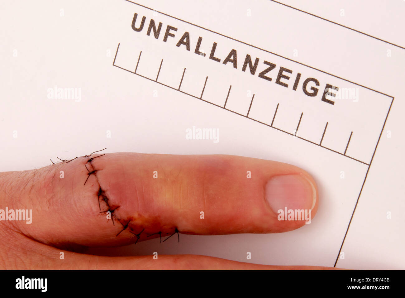 Man with needled finger fills out a accident report - Stock Image