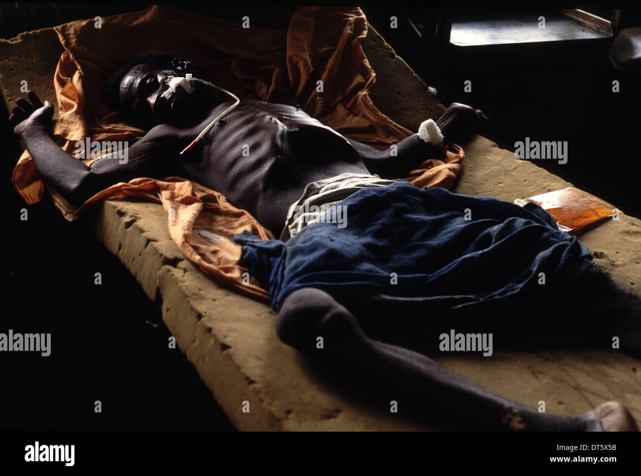 A man breathes his last breath in Bo hospital Sierra Leone - Stock Image