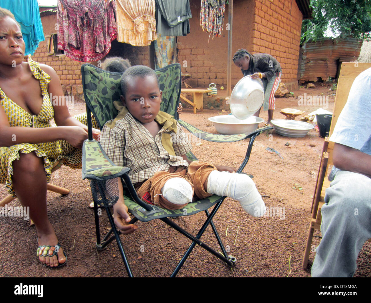 HANDOUT - An Amnesty International handout photo dated 2013 shows victims of Human Rights Violations by Seleka forces - Jovachi Mongonou had both legs amputated after he was injured by a shell, in the Central African Republic. Photo: AMNESTY INTERNATIONAL / Godfrey Byaruhanga / HANDOUT/EDITORIAL USE ONLY/MANDATORY CREDIT/NO SALES - Stock Image