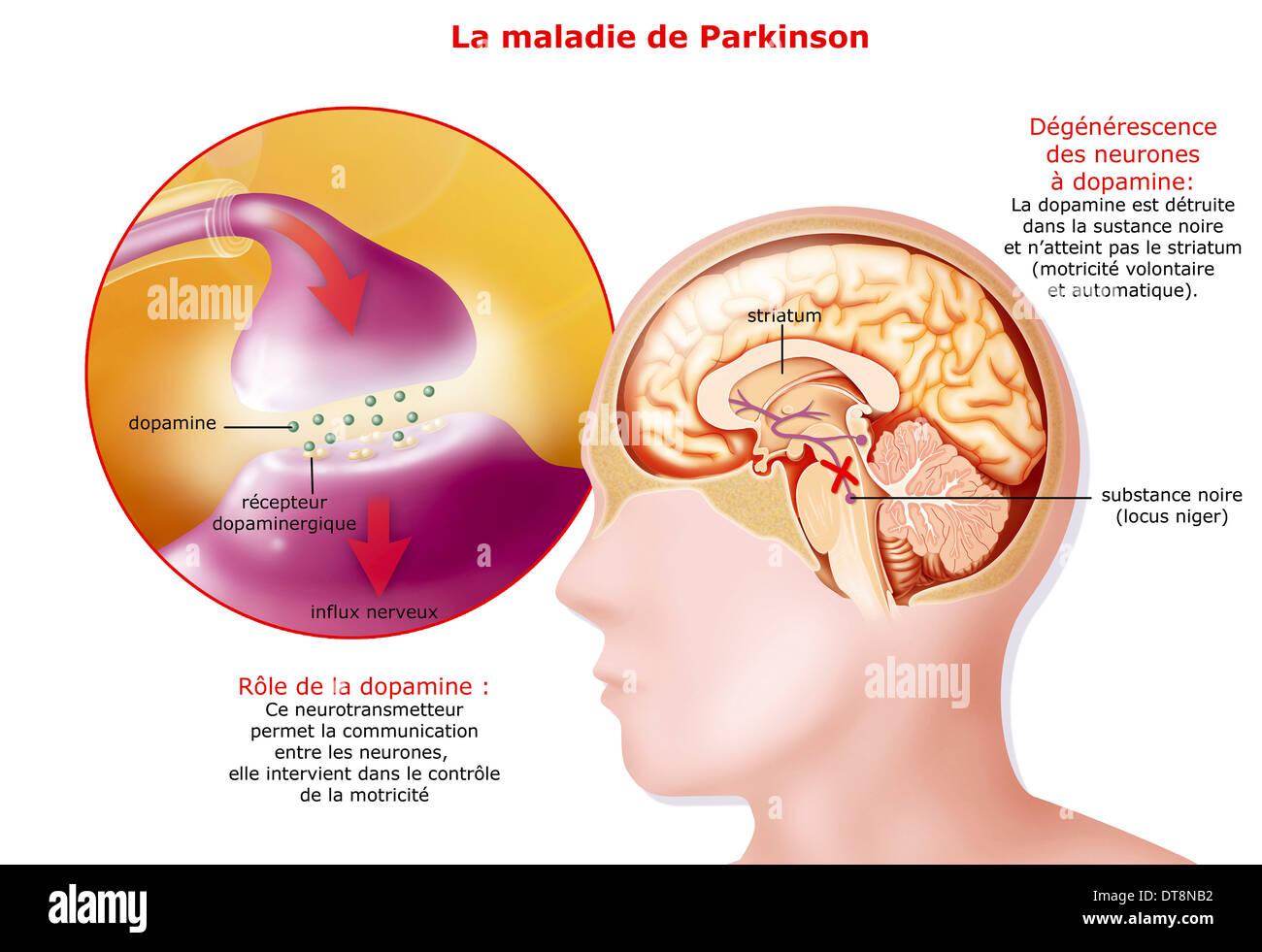 PARKINSON'S DISEASE, DRAWING - Stock Image