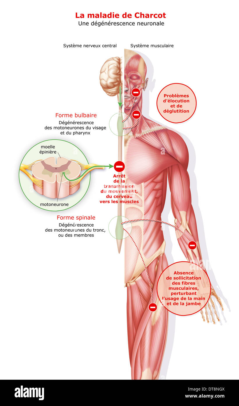AMYOTROPHIC LATERAL SCLEROSIS - Stock Image