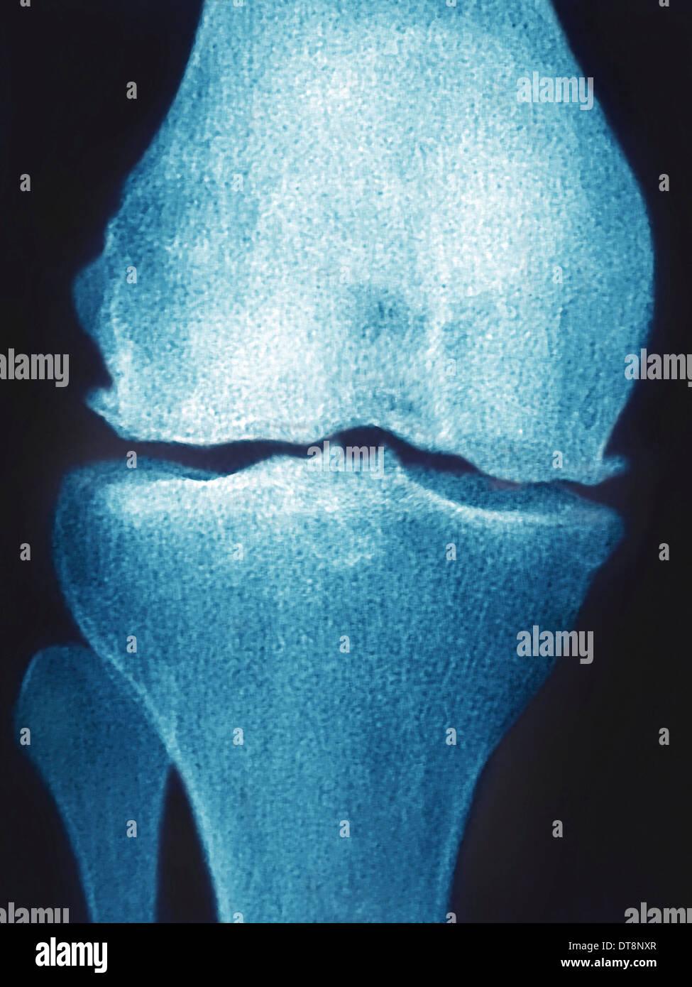 KNEE OSTEOARTHRITIS, X-RAY - Stock Image