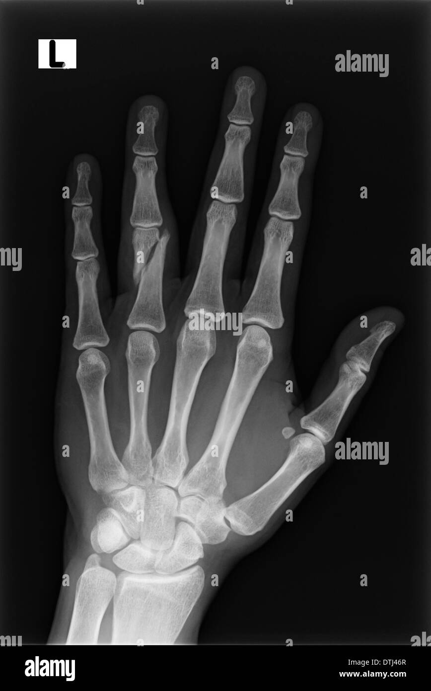 Broken Ring Finger X Ray