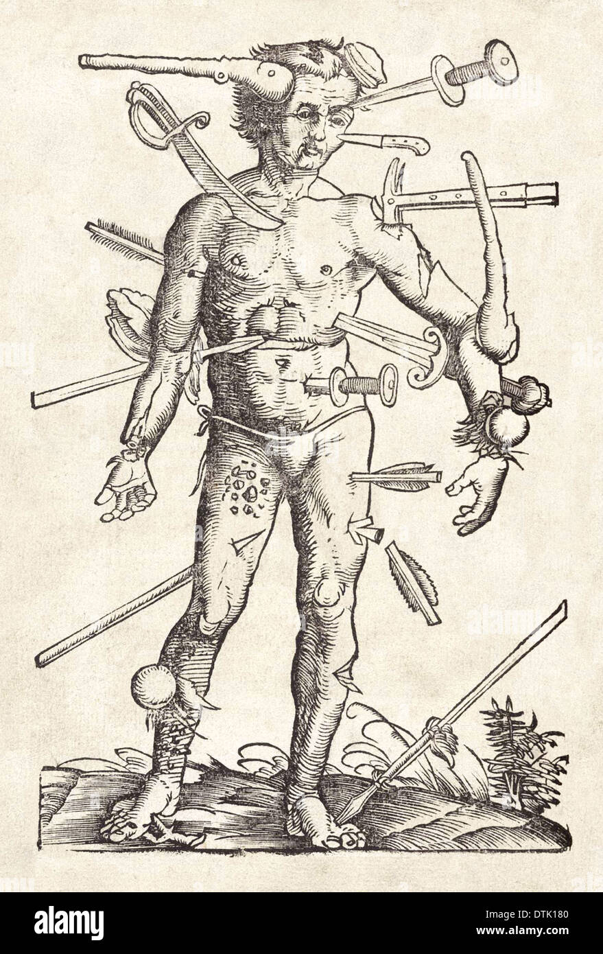 Wound Man woodcut attributed to Hans Wechtlin from German surgeon Hans von Gersdorff's Field book of surgery published in 1517. - Stock Image