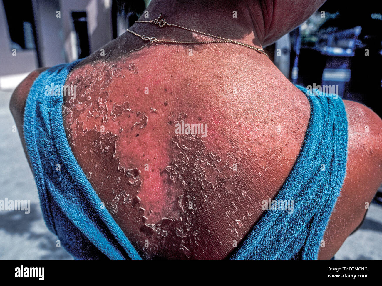 Human skin that has been damaged by sunburn peels off the back of a female Caucasian sunbather and leaves her exposed to further harmful sunlight. - Stock Image