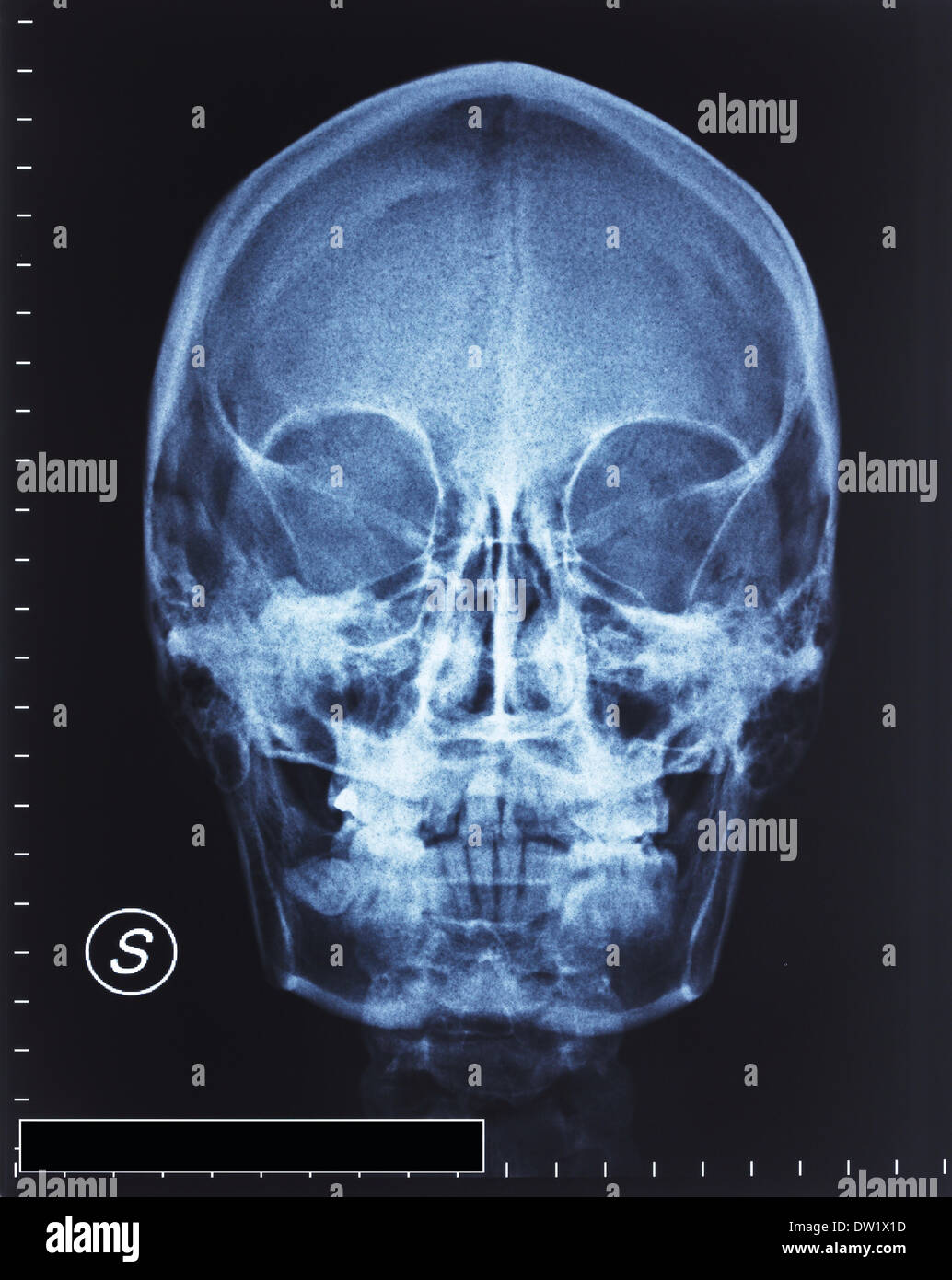 skull xray - Stock Image