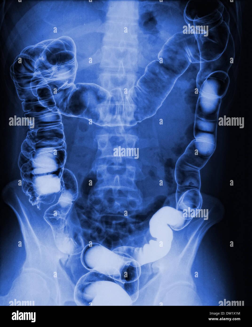 torso xray - Stock Image