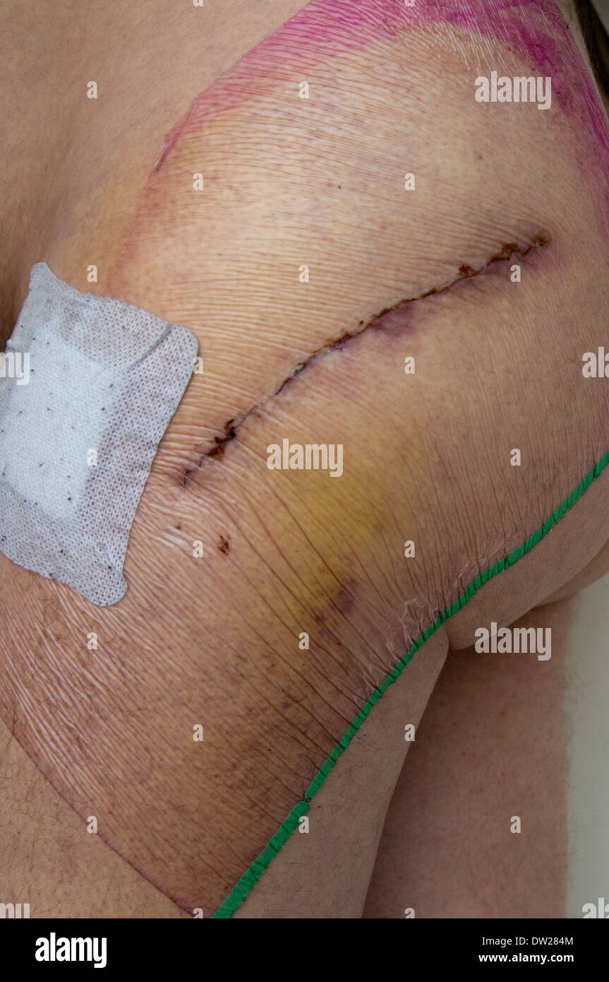 Scar after hip replacement surgery - Stock Image