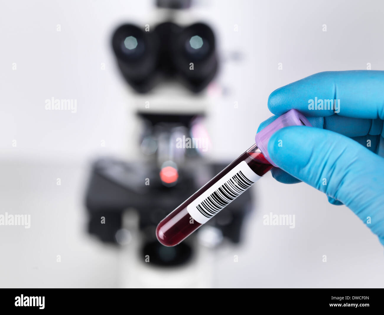 Laboratory scientist holding a blood sample with a upright compound microscope in the background - Stock Image