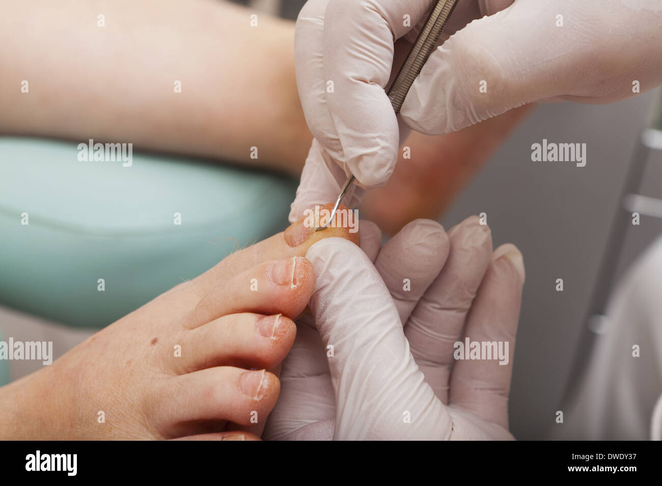 A podiatrist edited a toenail with a special toenail Lifter - Stock Image