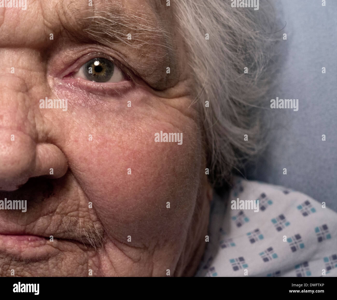 Close view on serious elderly vulnerable 100 years old lady alone in hospital bed - Stock Image