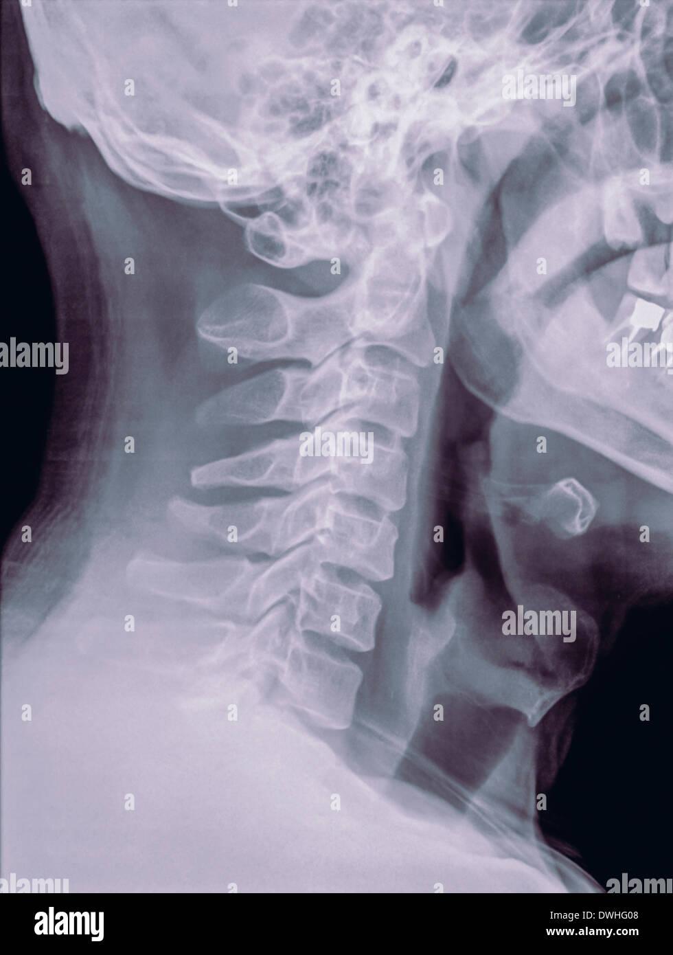 Raggio normale del raggio X Fotografie Stock Raggio normale del collo X Raggio-1261