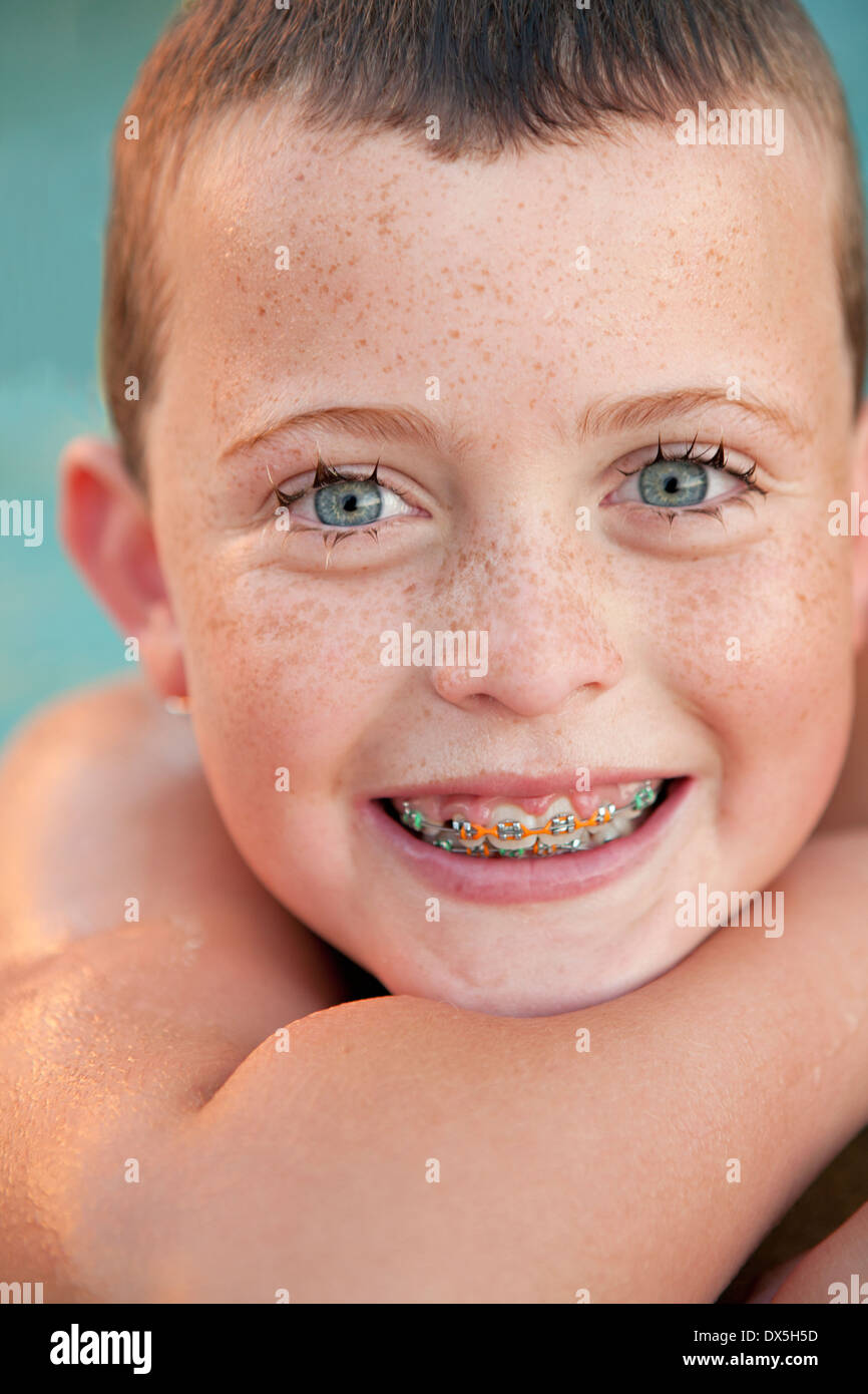 Blue eyed boy with braces and freckles in swimming pool, toothy smile, portrait, close up - Stock Image