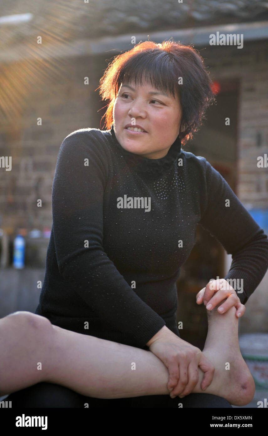 (140319) -- HEFEI, March 19, 2014 (Xinhua) -- Zhang Xianqin massages her husband in Xiaotian Town of Shucheng County, east China's Anhui Province, March 17, 2014. Eight years ago, Zhang Xianqin's husband Wang Shijun fell from a scaffolding during work, resulting in the paralysis of his lower limbs. The unexpected misfortune cast a shadow over the family and made Wang upset and grumpy. However, Zhang didn't give up on him. Instead, she shouldered the responsibility of taking care of the family and provided Wang with rehabilitation training. For eight years, Zhang has never visited her rela - Stock Image