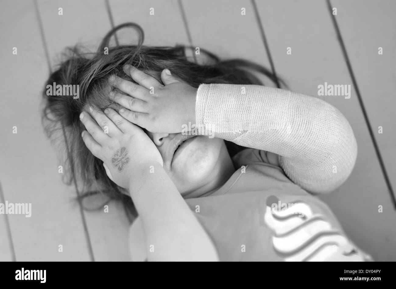 Abused little girl with a broken arm covering here face while crying. Concept photo of child abuse, domestic violent - Stock Image