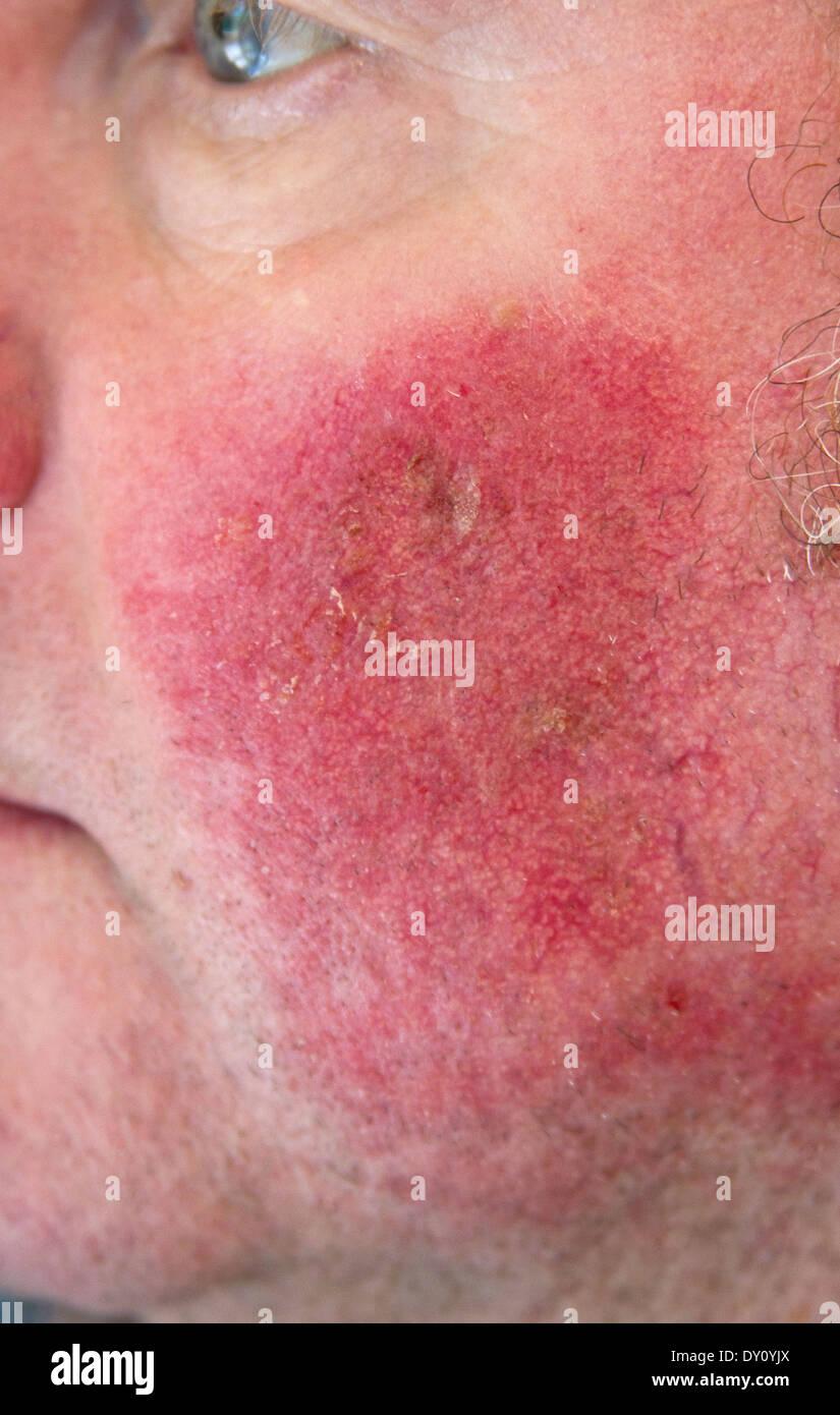 Dark Red Rash Accompanying Benign Skin Cancer After Applying Cream Stock Photo Alamy