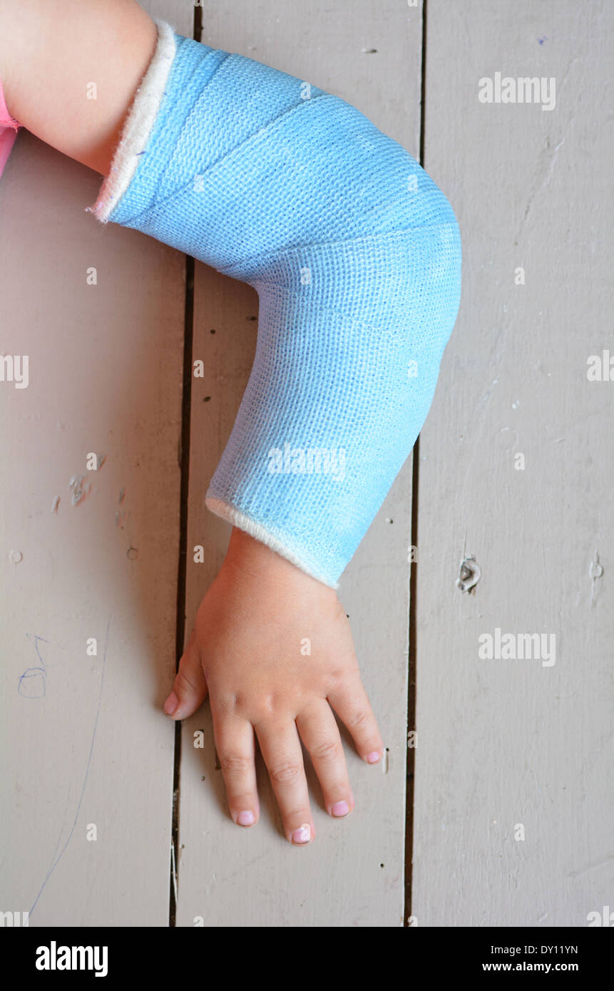 Child with a broken arm wearing a cast. Concept photo of child, children, health care, risk, danger, outdoor accidents, - Stock Image