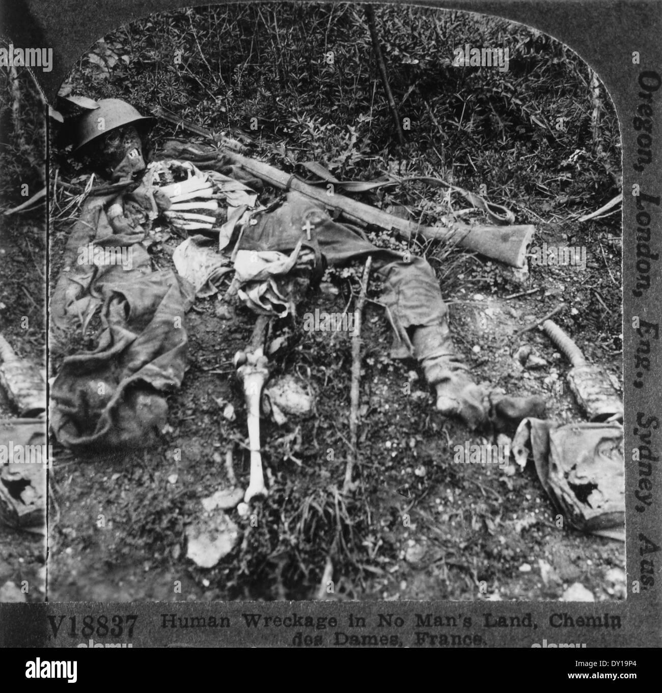 Human Skeleton Remains of Soldier, World War I, Chenin des Dames, France - Stock Image