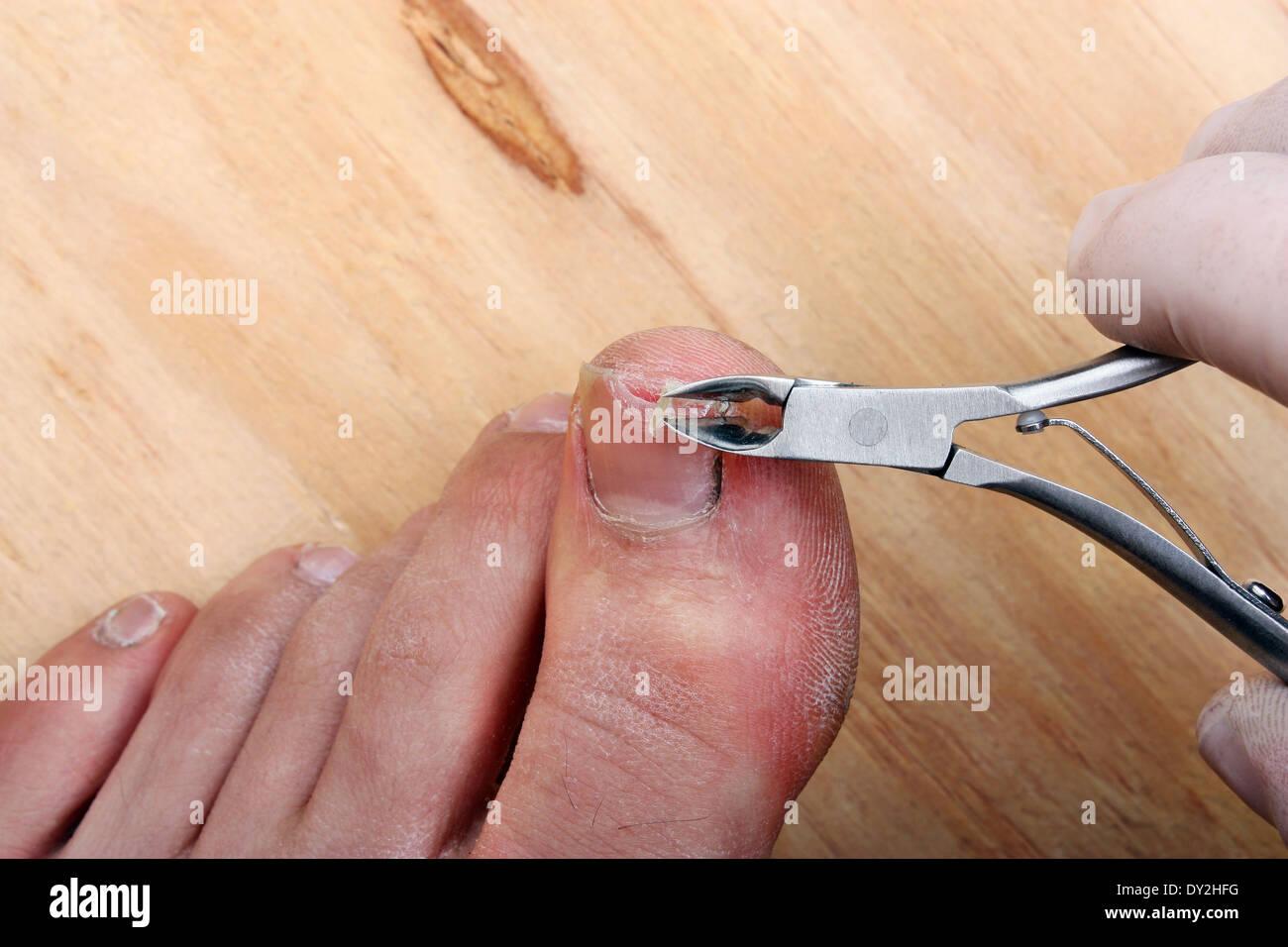 Surgery on a broken toe nail a man Stock Photo: 68284484 - Alamy