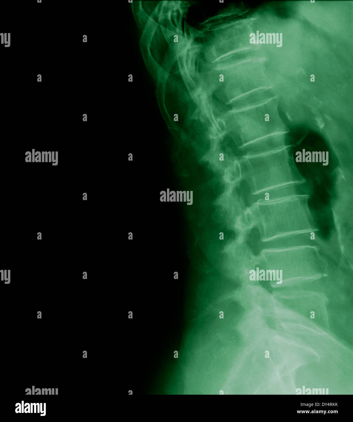 X-ray of lumbar spine of 77 year old patient, side view - Stock Image