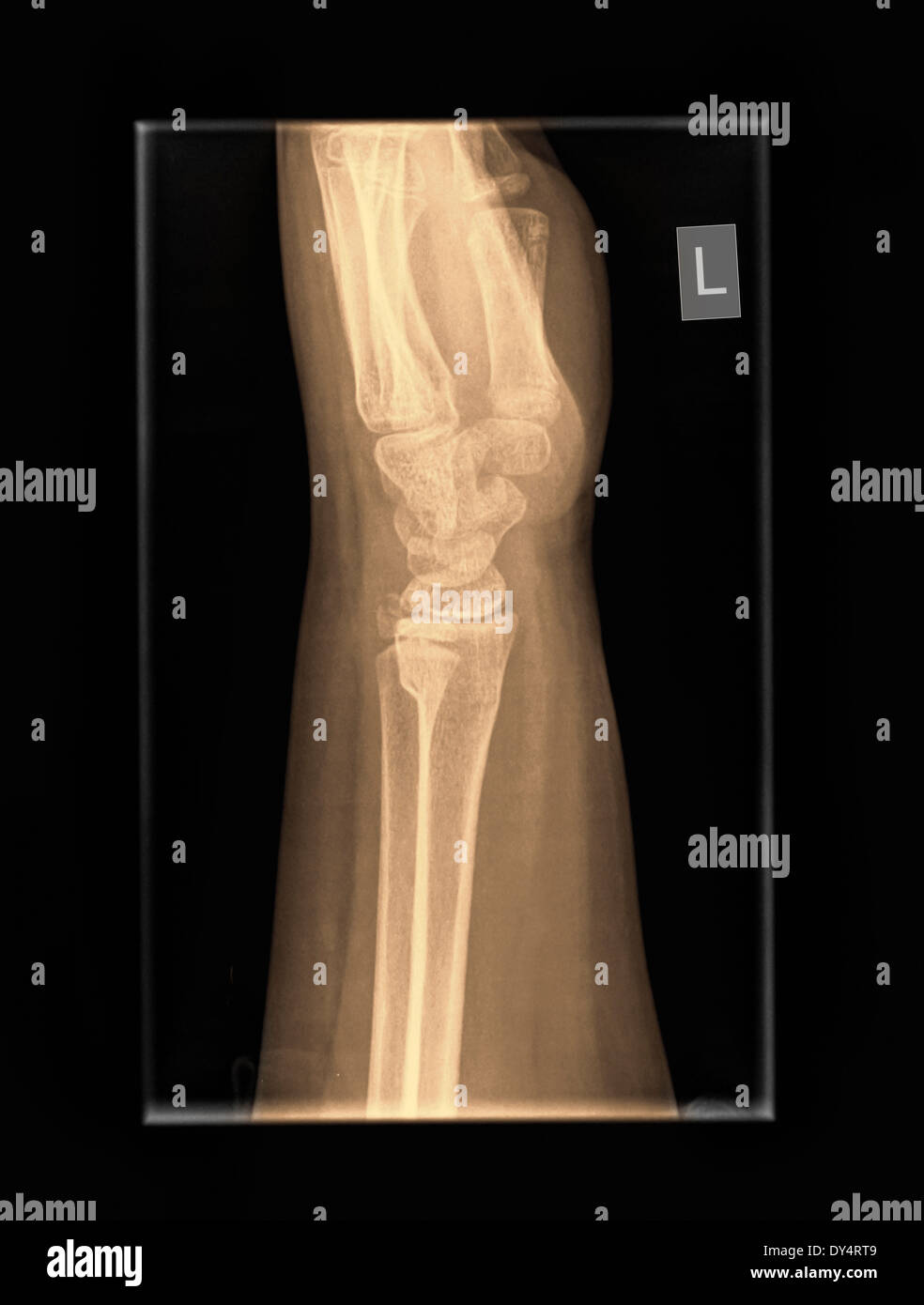 Which Are The Radius And The Ulna Stock Photos Which Are The