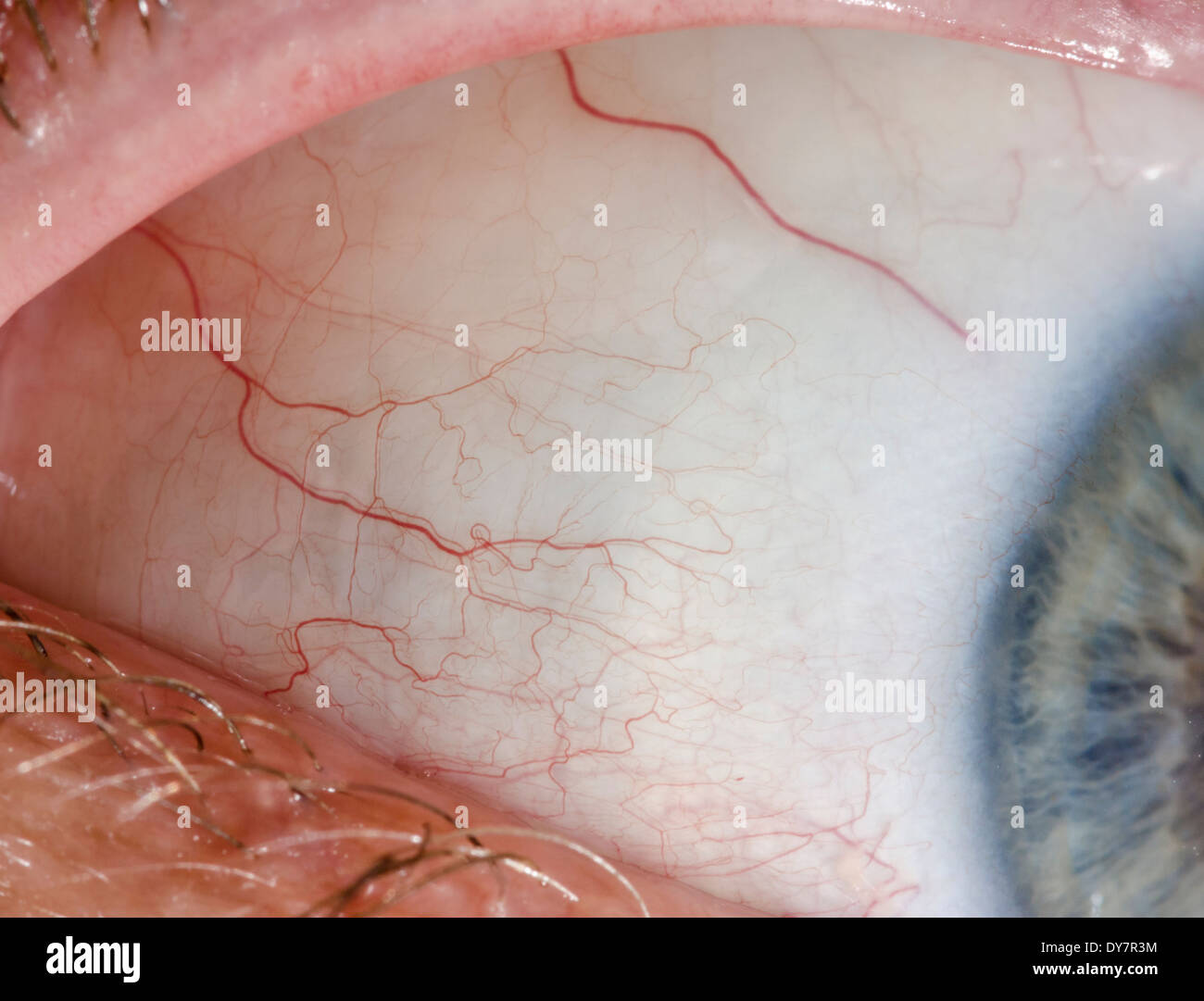 Sclera Stock Photos & Sclera Stock Images - Alamy