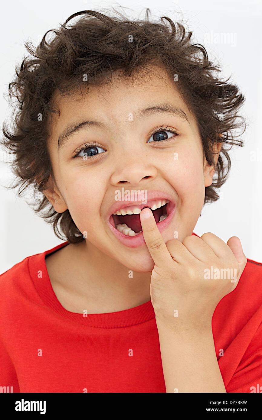 Losing milk teeth Stock Photo