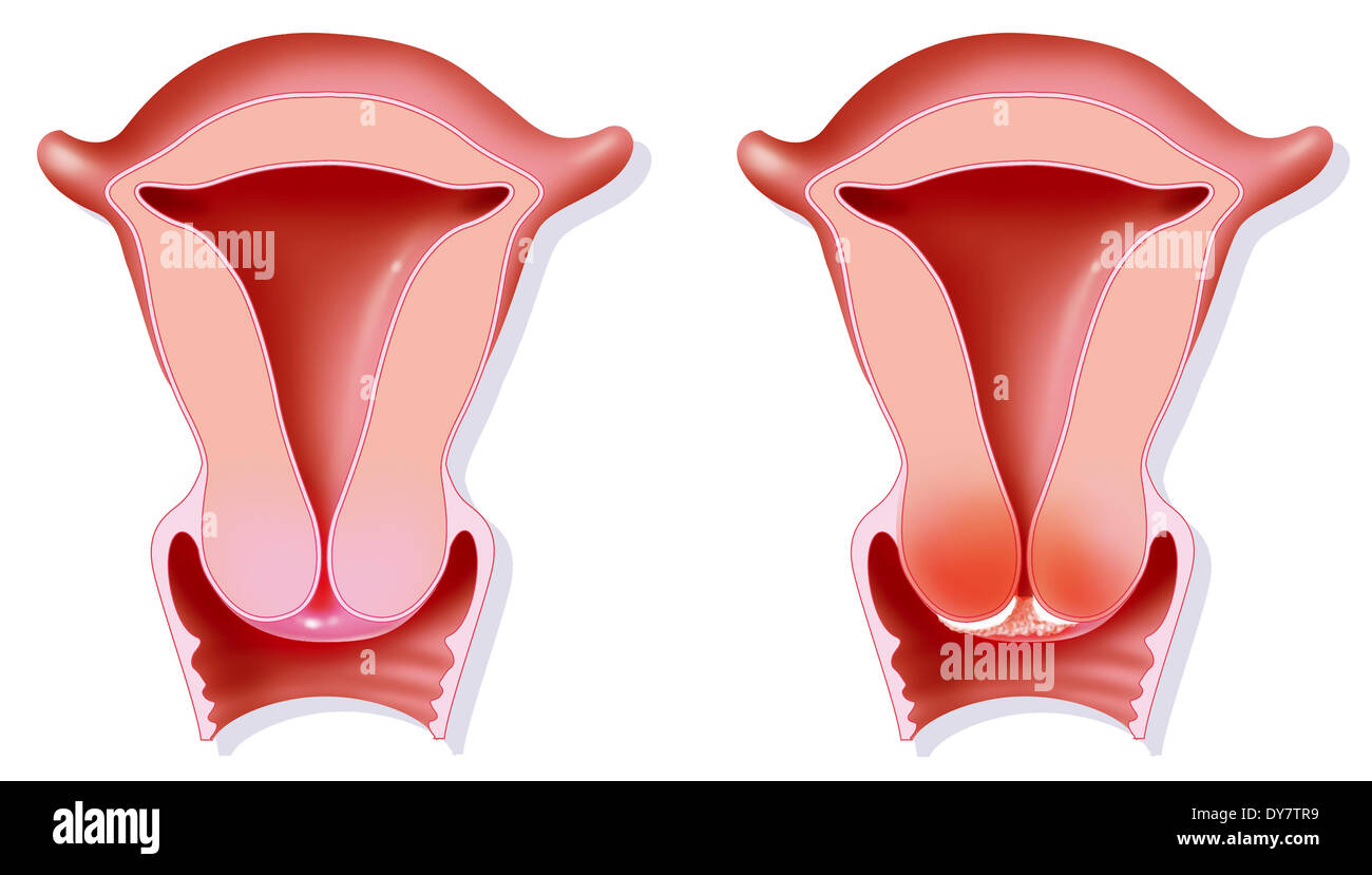 Cervical cancer, drawing - Stock Image