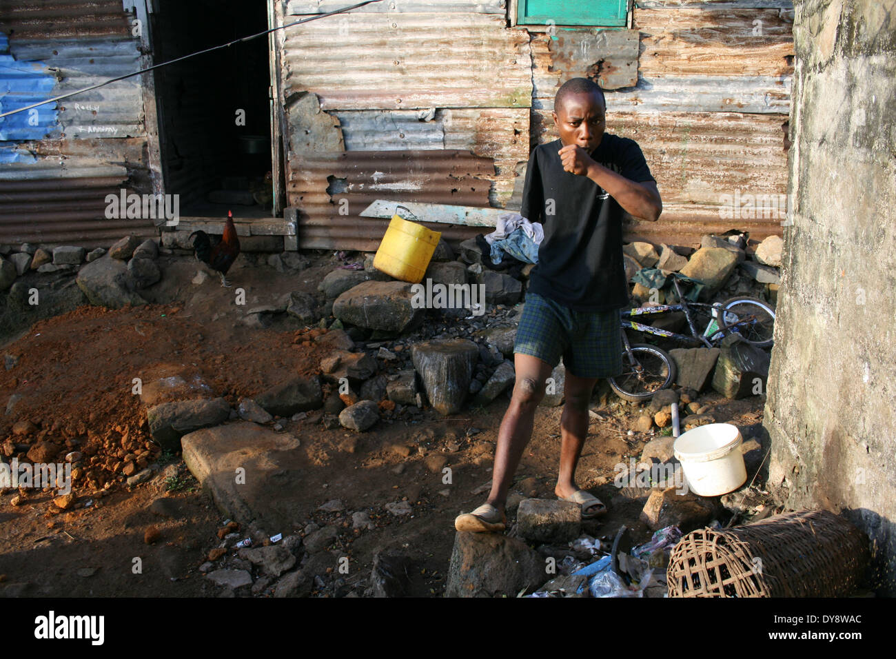 Liberia. Monrovia. Joseph Allen brushing his teeth. He lost his arm while seeking refuge during the liberian civil war. He now f - Stock Image