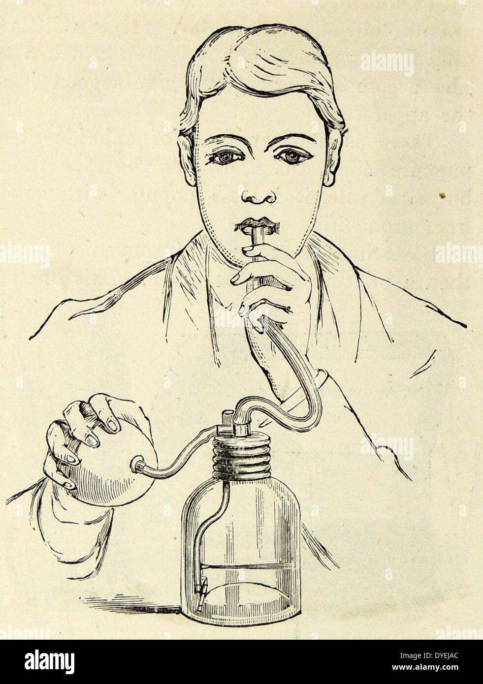 Bronchitis patient using an atomiser to relieve shortness of breath. From ''The Family Physician'', ondon, c1895. - Stock Image