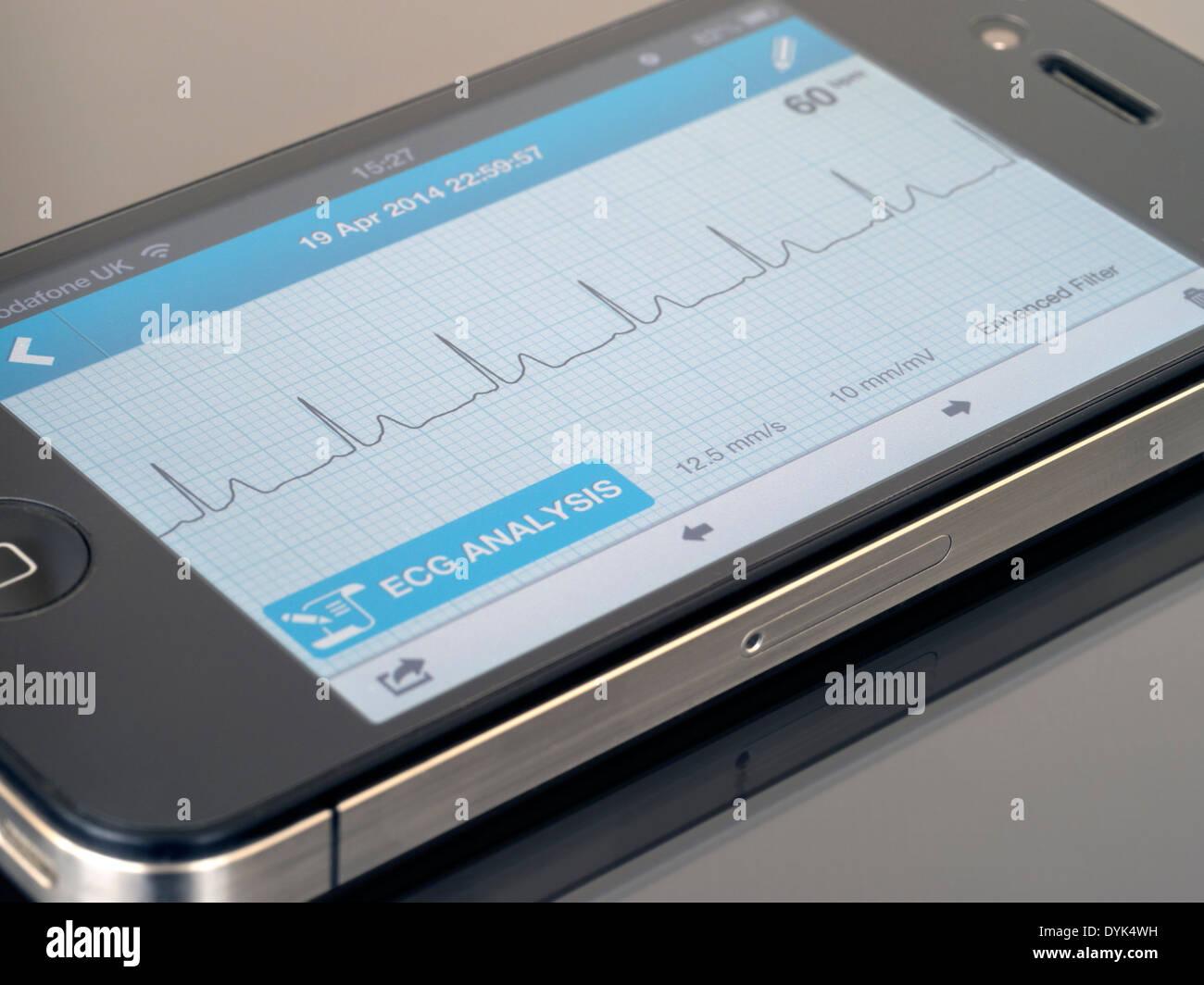 Ekg Monitor Stock Photos & Ekg Monitor Stock Images - Alamy