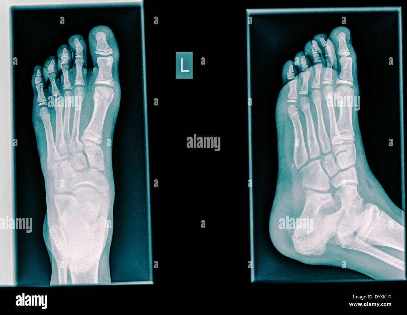 Healthy X Ray Ofa Foot Of A 12 Year Old Male Stock Photo 68812505