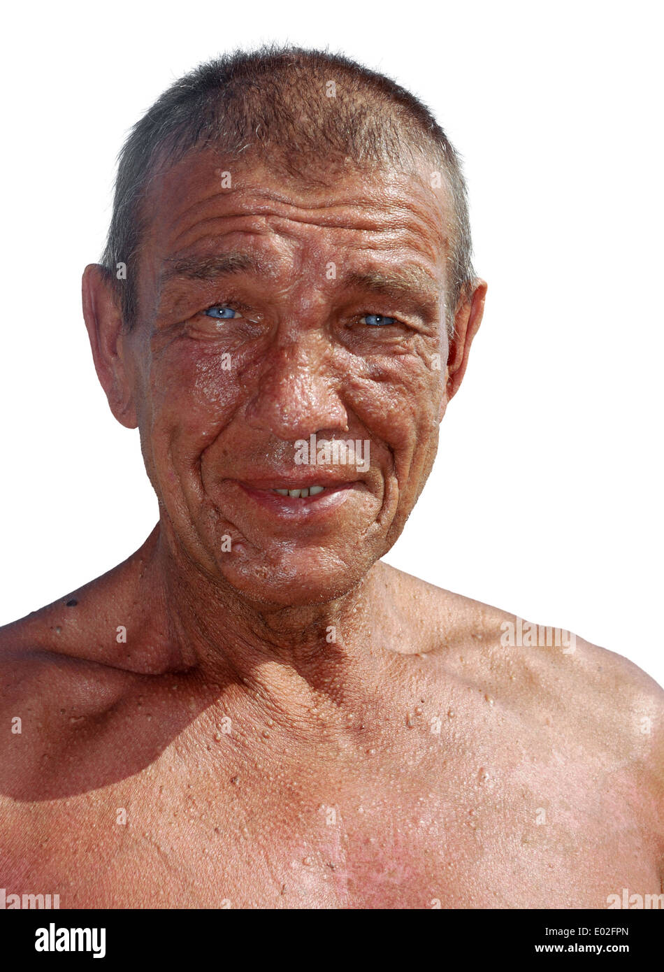 tanned tanned older man with wrinkles and skin problems - Stock Image