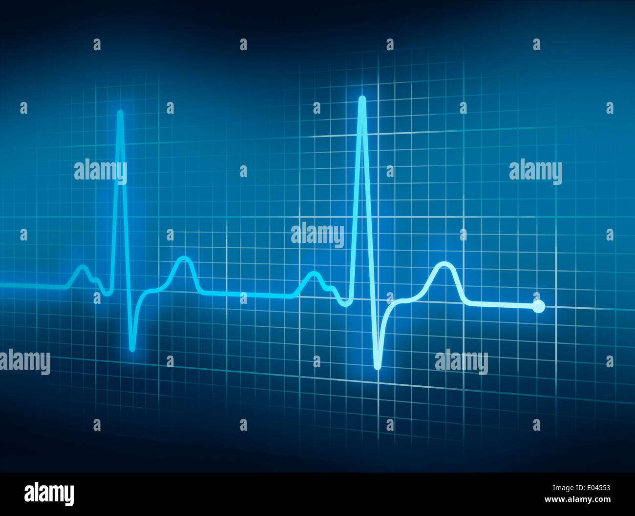 Blue Electrocardiography Heart Beat Pulse on Graph. - Stock Image
