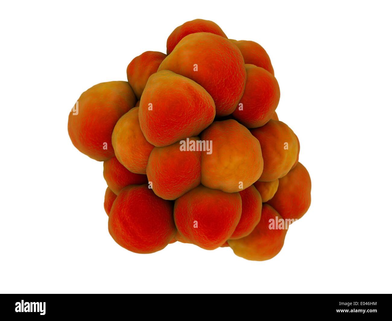 Microscopic view of tumor. Stock Photo
