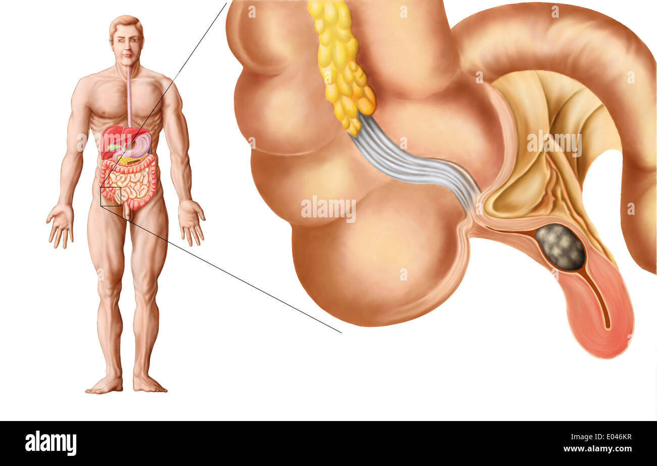 Medical ilustration of an appendix with appendicitis. - Stock Image