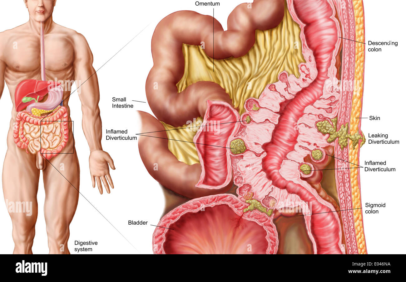 Ascending Colon Stock Photos Ascending Colon Stock Images Alamy