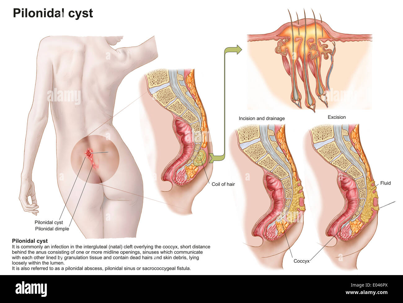 Medical Ilustration Of A Pilonidal Cyst Near The Natal