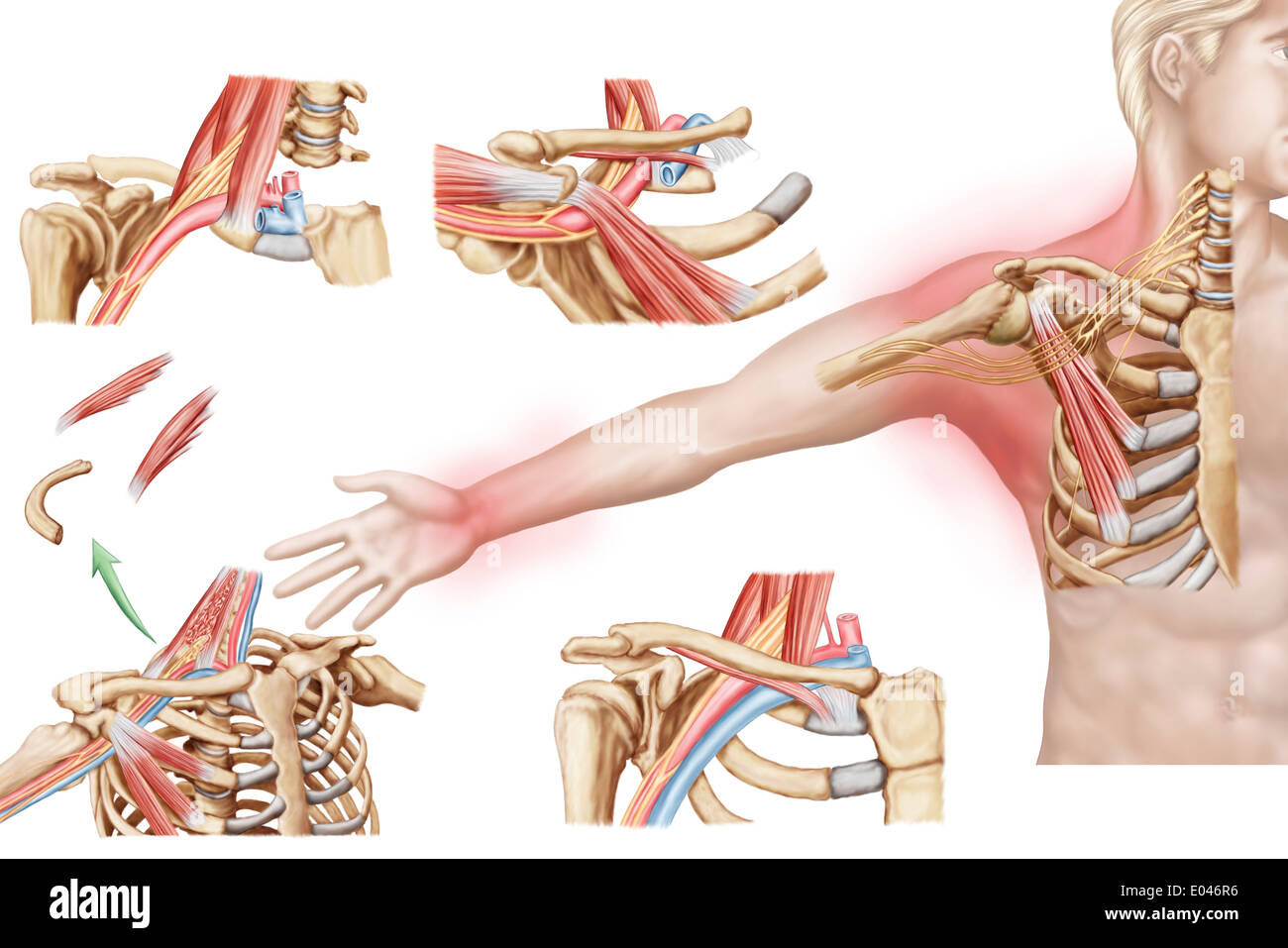 Medical illustration detailing thoracic outlet syndrome Stock Photo ...