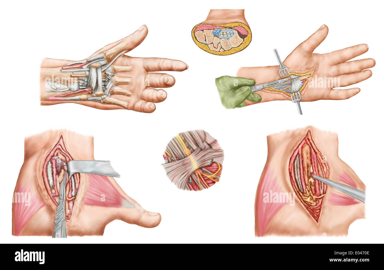 Medical illustration showing carpal tunnel syndrome in the human wrist, and the surgical procedures associated with it. - Stock Image