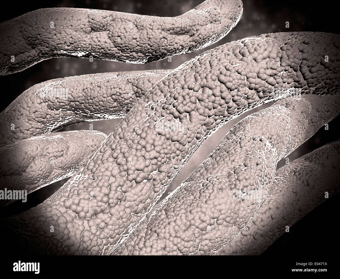Microscopic view of corncob formation in dental plaque. - Stock Image
