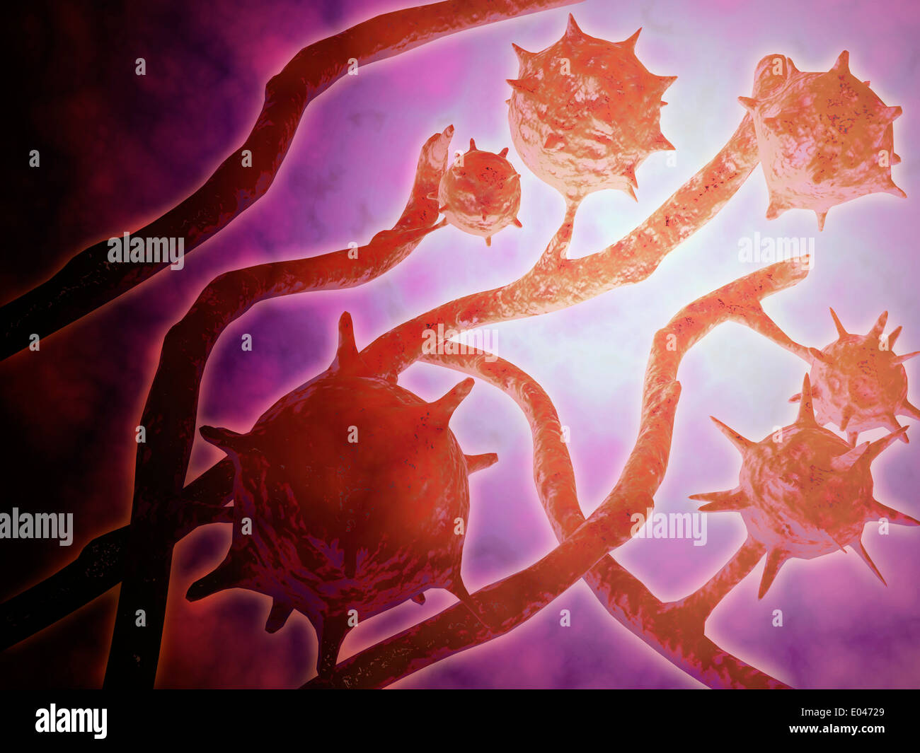 Microscopic view of histoplasmosis. - Stock Image