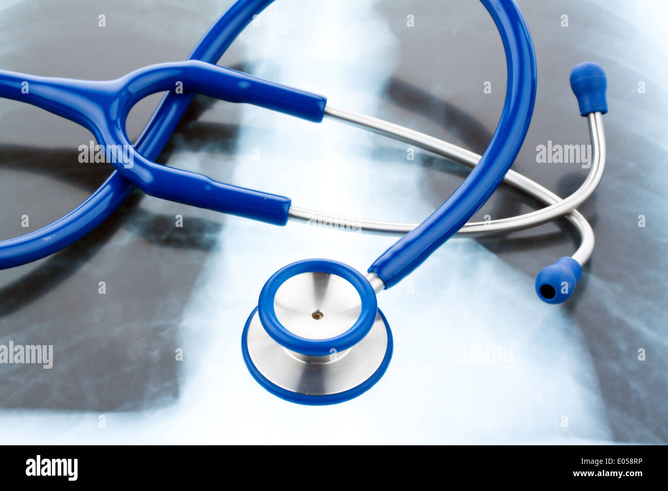 A Stethoskop and a X-ray picture. Symbol for health., Ein Stethoskop und ein Roentgenbild. Symbol fuer gesundheit. Stock Photo