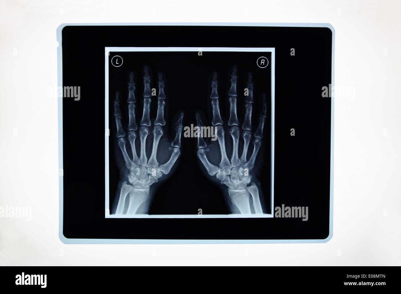 Illustration - An X-ray display the bones of two hands in Germany, 19 February 2011. Photo: Berliner Verlag/Steinach - NO WIRE SERVICE - Stock Image