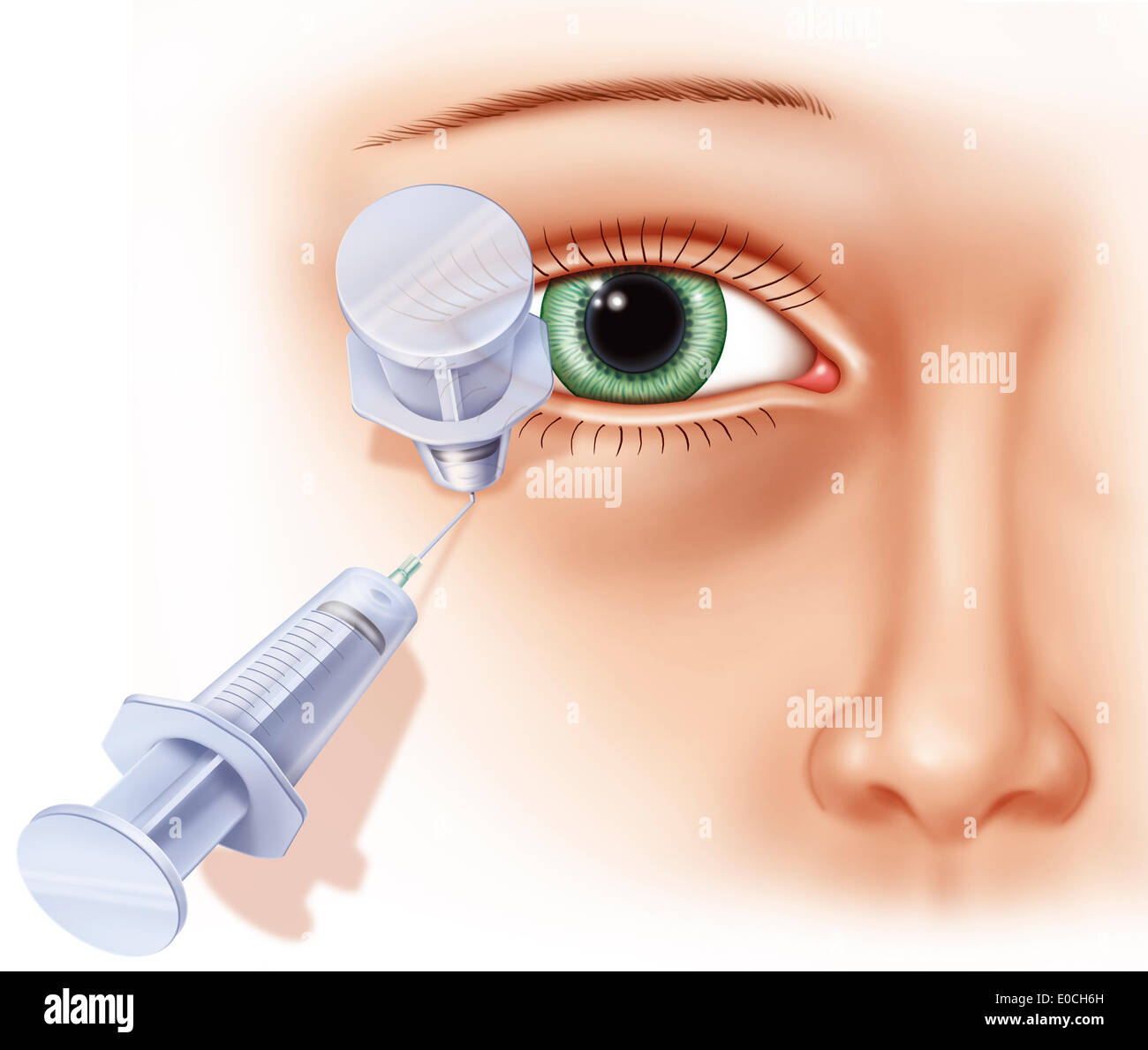 Peribulbar anaesthesia - Stock Image