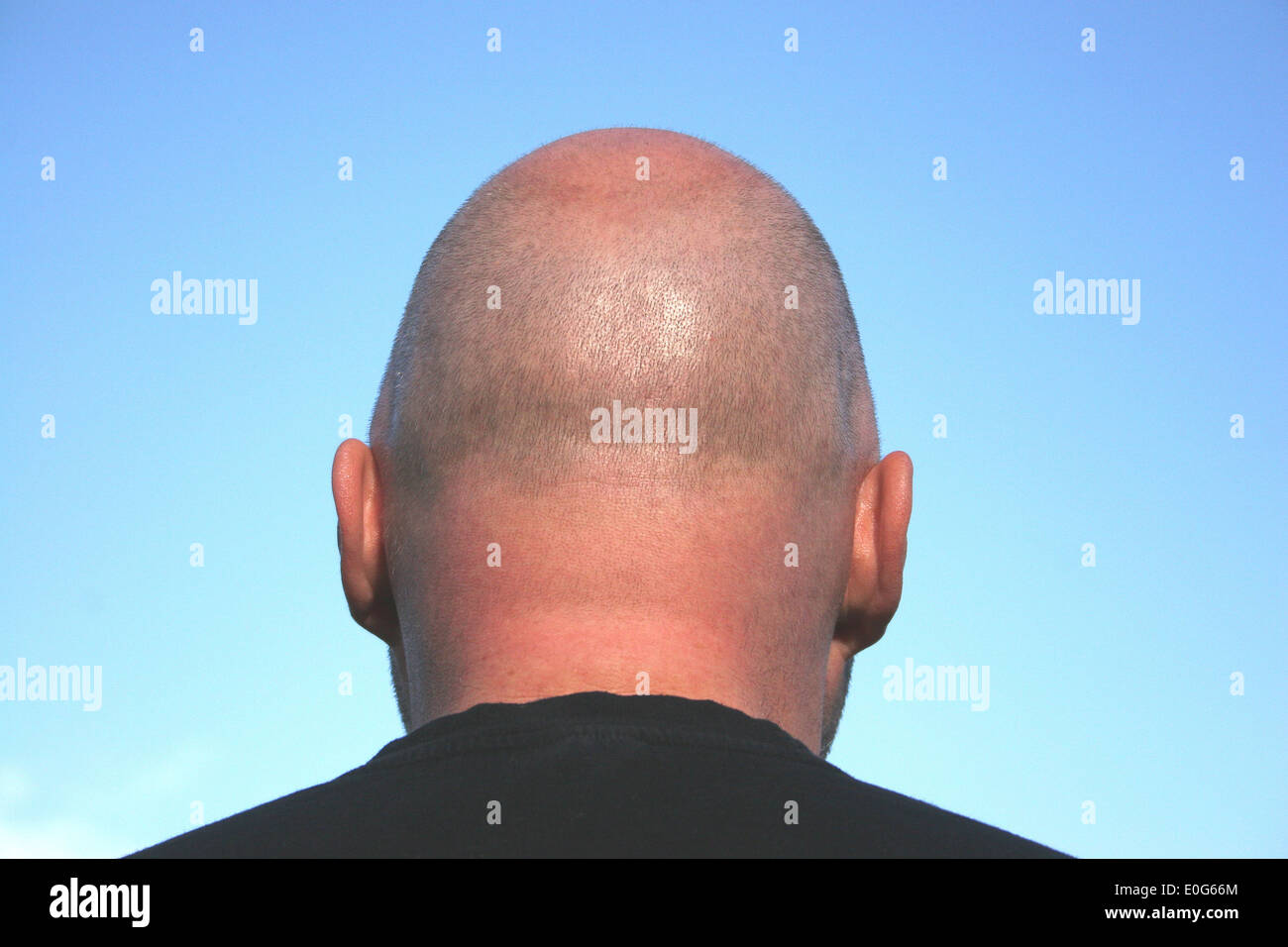 Bald head [], hairs, population, population, to, figure, figures, hairstyle, hairstyles, society, social classes, Stock Photo