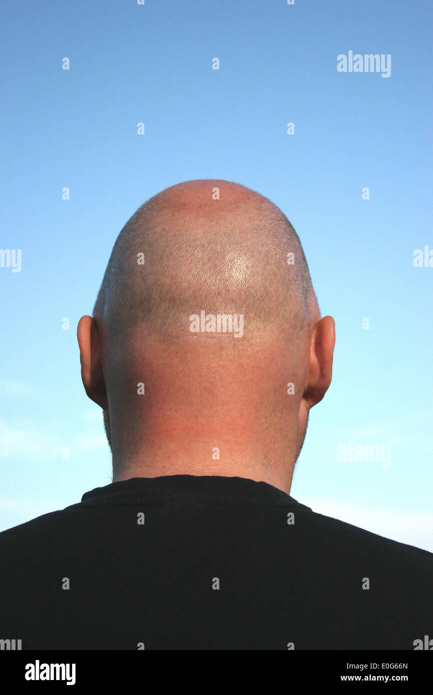 Bald head [], hairs, population, population, to, figure, figures, hairstyle, hairstyles, society, social classes, bald head, bal - Stock Image
